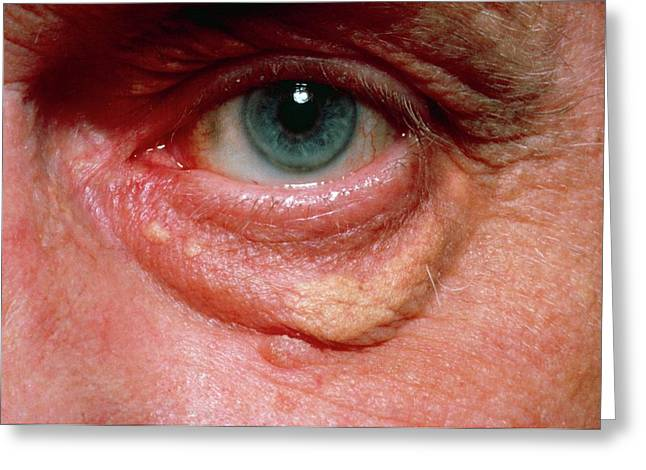 Yellowish Swelling Of Lower Eyelid Greeting Card