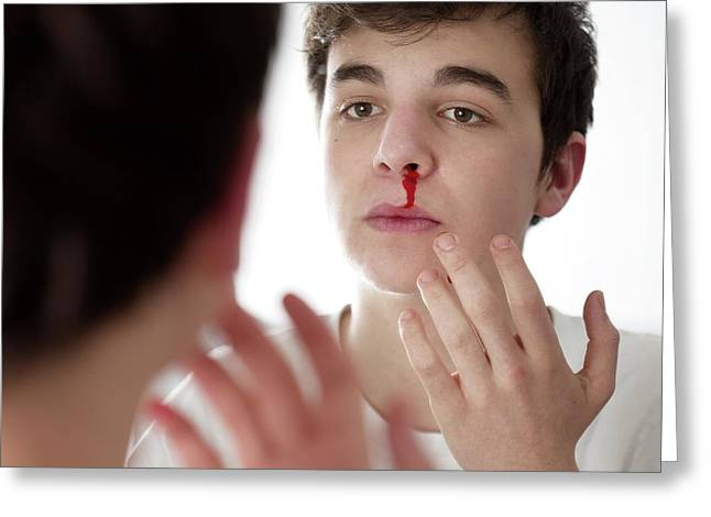 Young Man With Nose Bleed Greeting Card by Mauro Fermariello