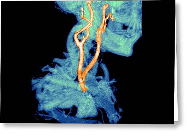3d Cta Of Carotid Arteries Greeting Card