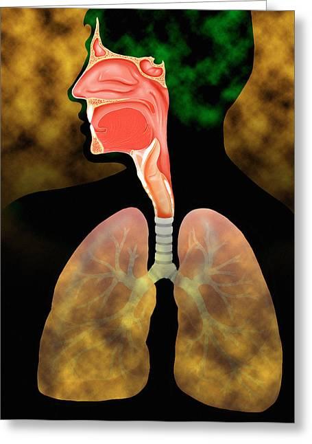 Air Pollution Greeting Card by David Gifford