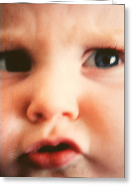 Baby's Face Greeting Card by Cristina Pedrazzini