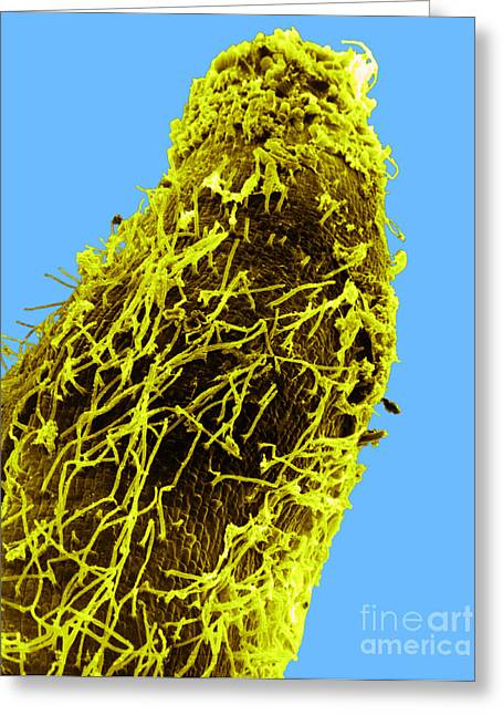 Bacteria On Sorghum Root Tip Greeting Card by Science Source