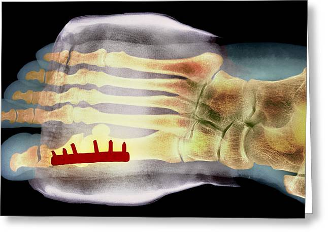 Big Toe After Bunion Surgery, X-ray Greeting Card by