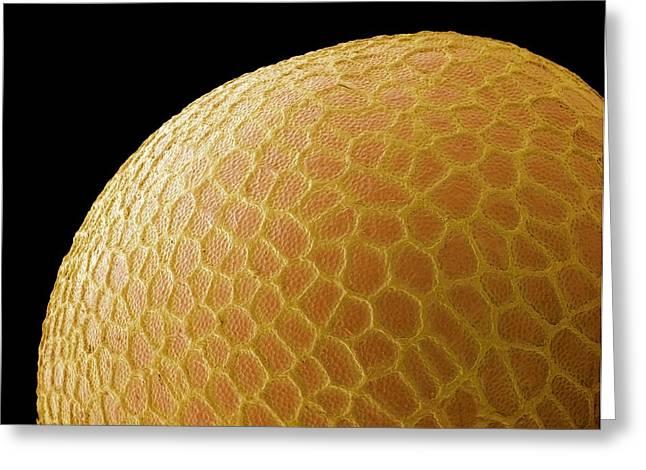 Black Mustard Seed, Sem Greeting Card by Steve Gschmeissner