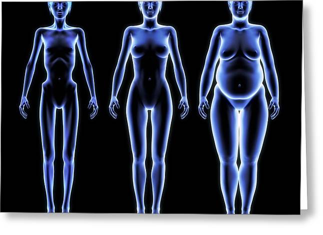 Body Shapes, Artwork Greeting Card