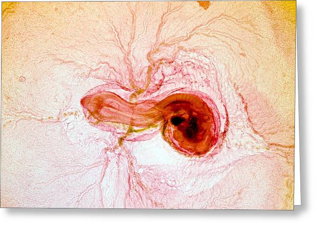 Chicken Embryo, Light Micrograph Greeting Card by Dr Keith Wheeler