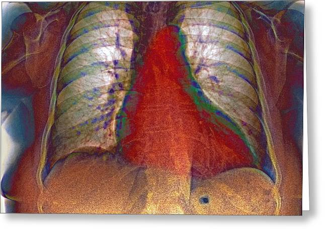 Enlarged Heart, X-ray Greeting Card by Du Cane Medical Imaging Ltd