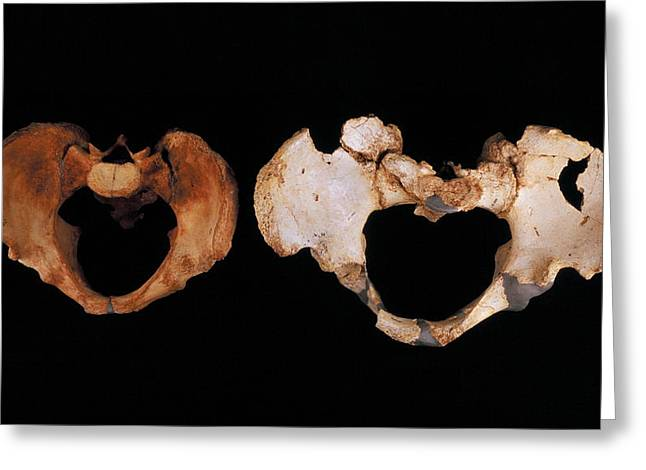 Fossilised Pelvis, Sima De Los Huesos Greeting Card by Javier Truebamsf