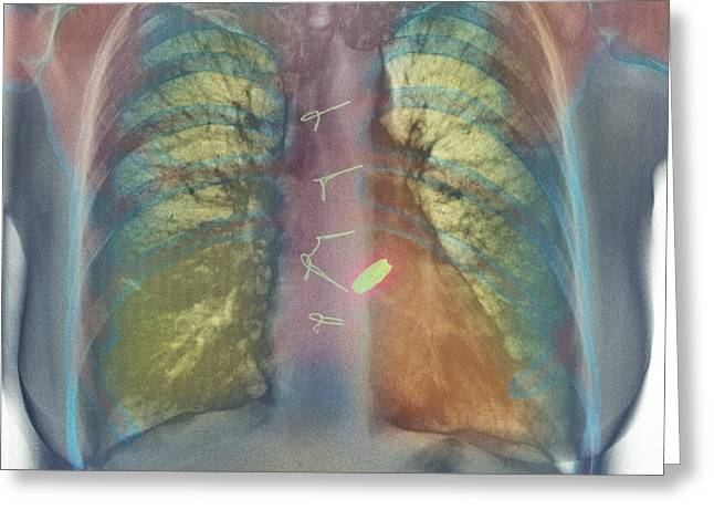 Heart Valve Replacement, X-ray Greeting Card by