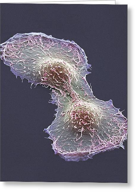 Hela Cell Division, Sem Greeting Card by Thomas Deerinck, Ncmir