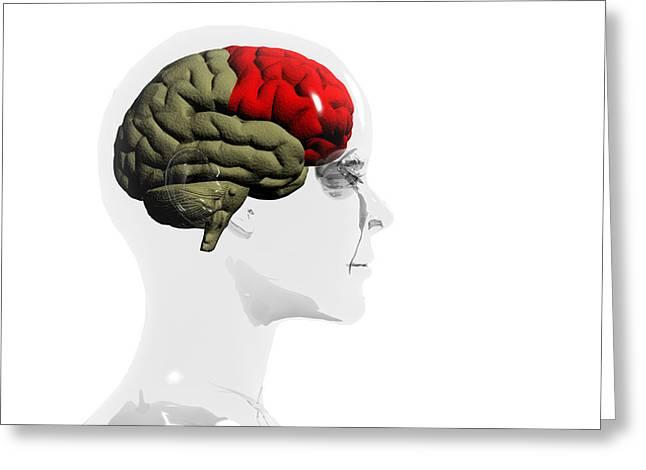Human Brain, Frontal Lobe Greeting Card by Christian Darkin