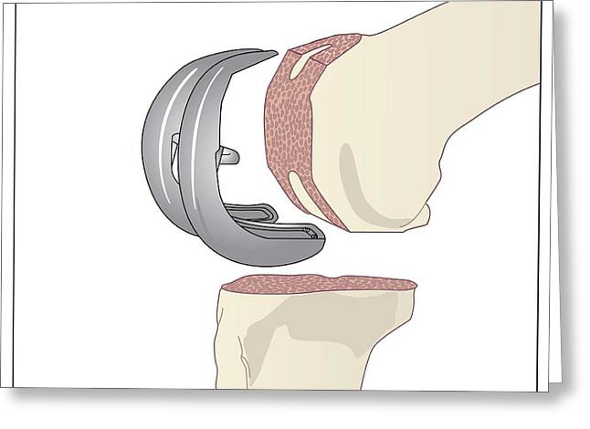 Knee Replacement, Artwork Greeting Card