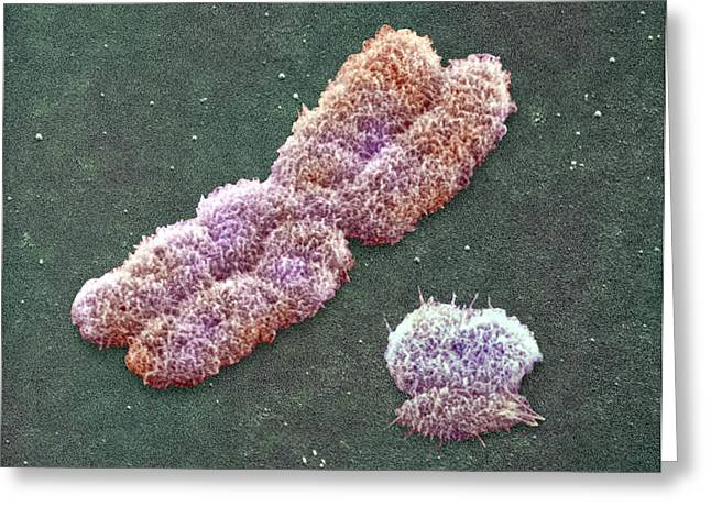 Male Sex Chromosomes, Sem Greeting Card by Power And Syred