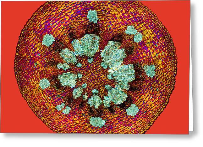 Mistletoe Stem, Light Micrograph Greeting Card