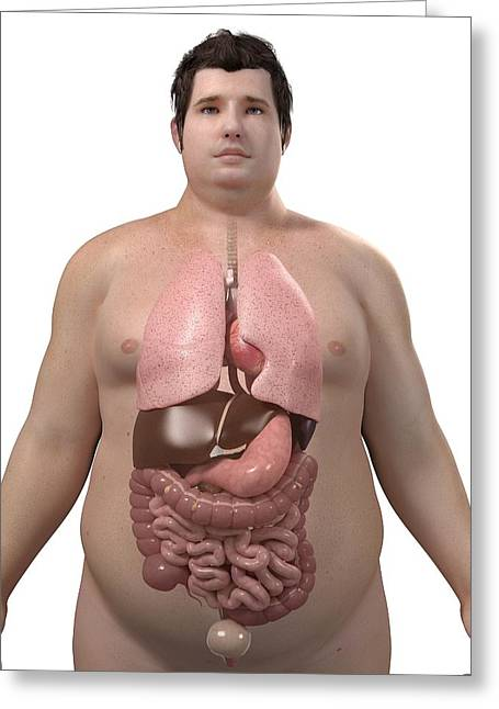 Obese Man's Organs, Artwork Greeting Card by Sciepro