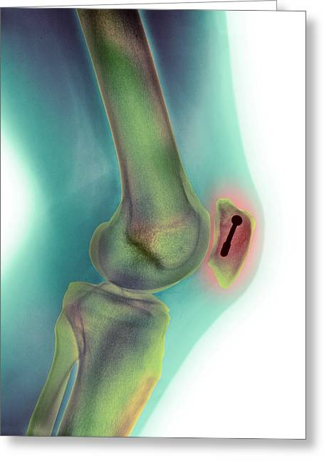 Pinned Kneecap Fracture, X-ray Greeting Card by