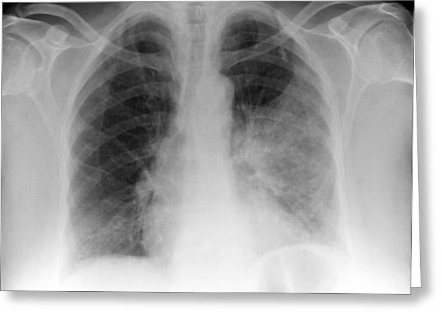 Pulmonary Consolidation, X-ray Greeting Card
