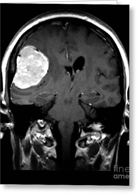 Right Sided Meningioma Greeting Card by Medical Body Scans