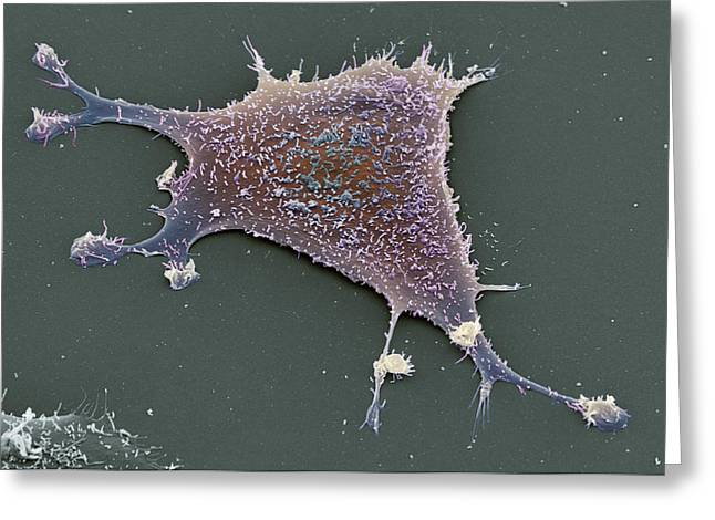 Sarcoma Cancer Cell Greeting Card by Steve Gschmeissner