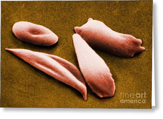 Sickle Red Blood Cells Greeting Card by Omikron