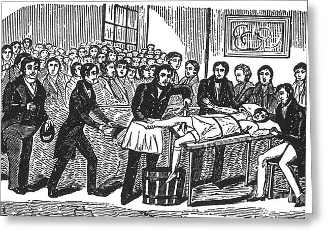 Surgery Without Anesthesia, Pre-1840s Greeting Card by Science Source