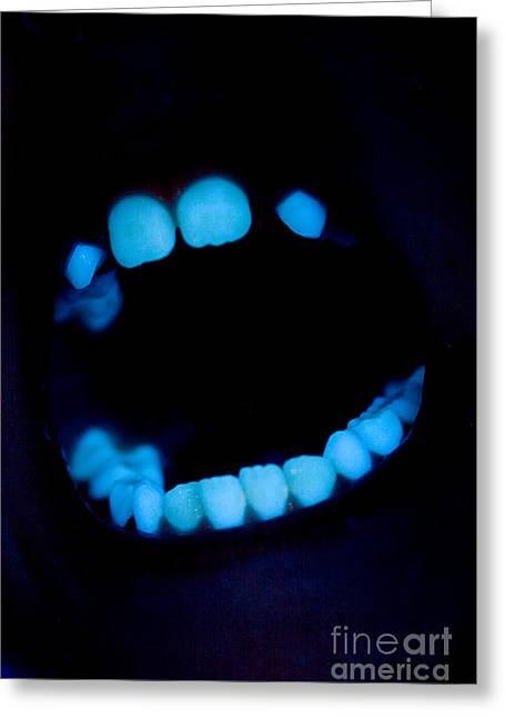 Teeth Greeting Card by Ted Kinsman