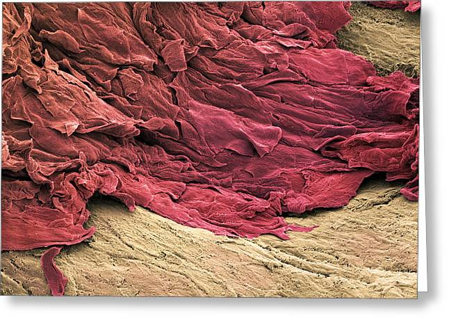 Wound Scab, Sem Greeting Card by Steve Gschmeissner