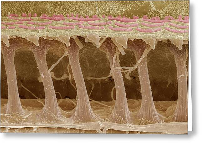 Inner Ear Hair Cells, Sem Greeting Card by Steve Gschmeissner