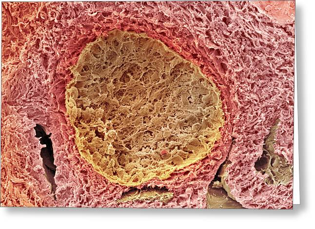 Ovarian Follicle, Sem Greeting Card by Steve Gschmeissner