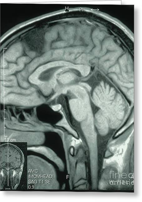 Mri Showing Arachnoid Cyst Greeting Card by Science Source