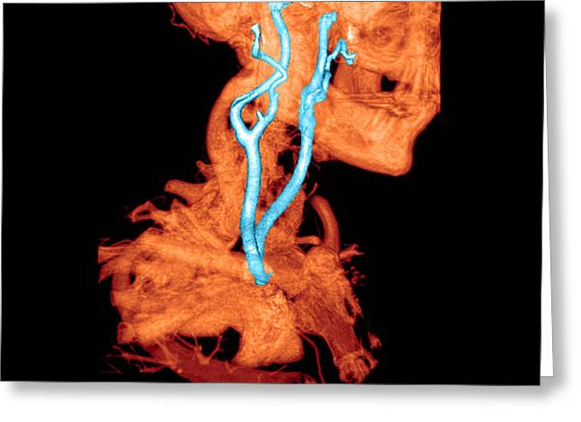 3d Cta Of Carotid Arteries Greeting Card by Medical Body Scans