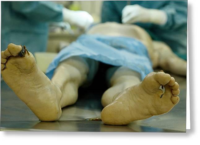 Autopsy Examination Greeting Card