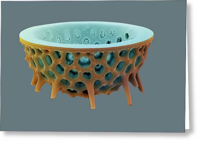 Diatom, Sem Greeting Card by David Mccarthy