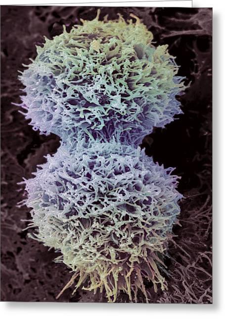 Dividing Cervical Cancer Cell, Sem Greeting Card by Steve Gschmeissner