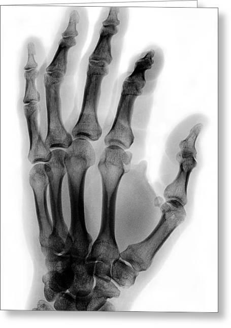 Finger Fracture Greeting Card by Ted Kinsman
