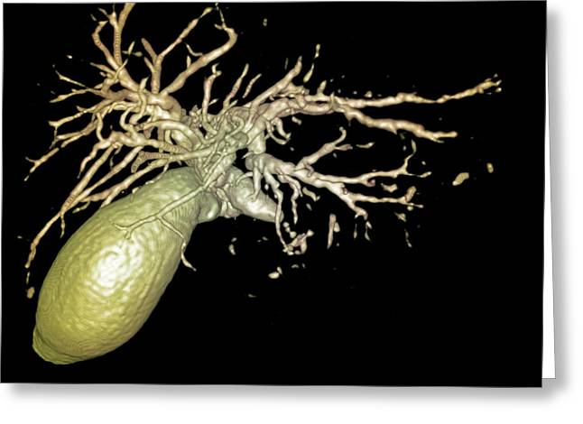 Gallbladder And Biliary Tree, 3d Mri Greeting Card by Du Cane Medical Imaging Ltd