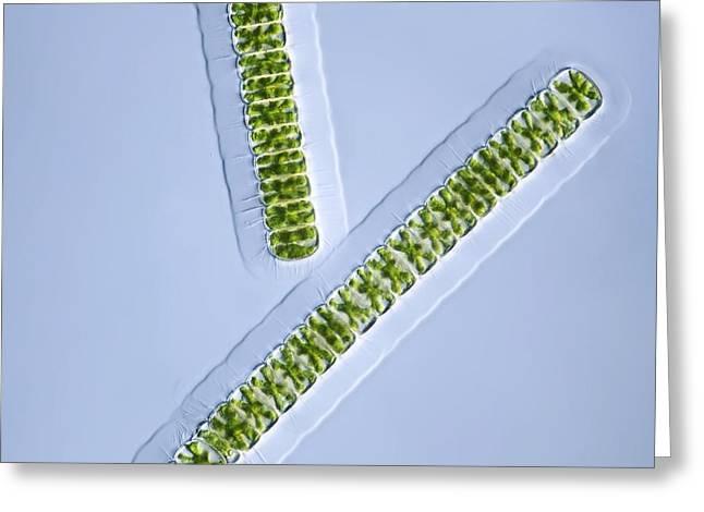 Green Algae, Light Micrograph Greeting Card by Frank Fox
