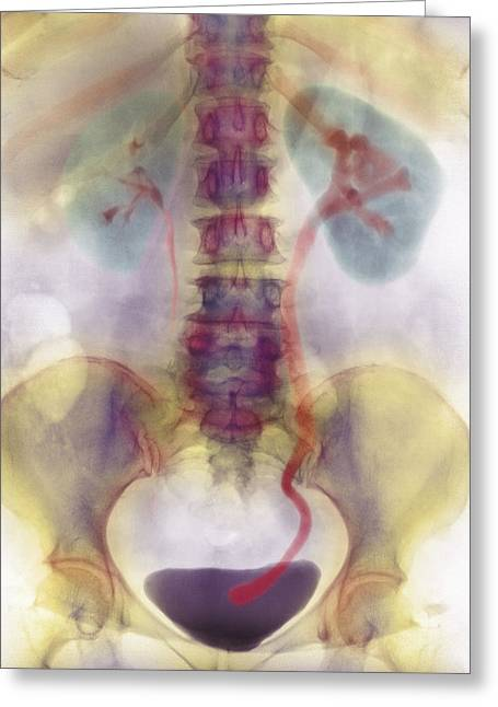 Kidney Stone In Ureter Greeting Card