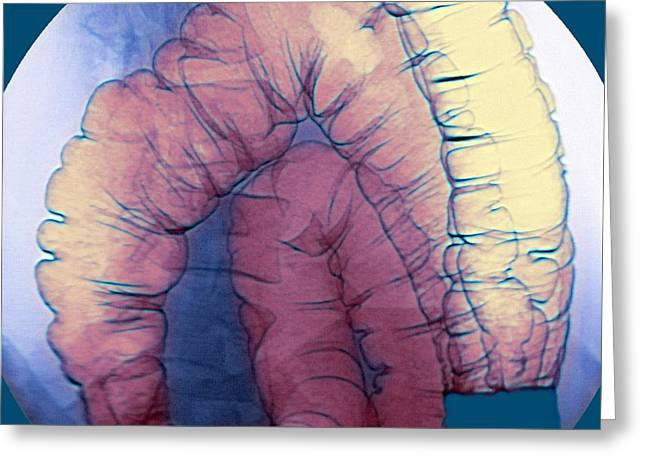 Large Intestine, X-ray Greeting Card by Du Cane Medical Imaging Ltd