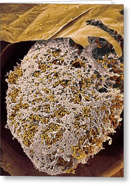 Nitrogen-fixing Bacteria, Sem Greeting Card by Steve Gschmeissner