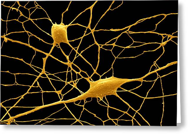 Purkinje Nerve Cells, Sem Greeting Card by David Mccarthy