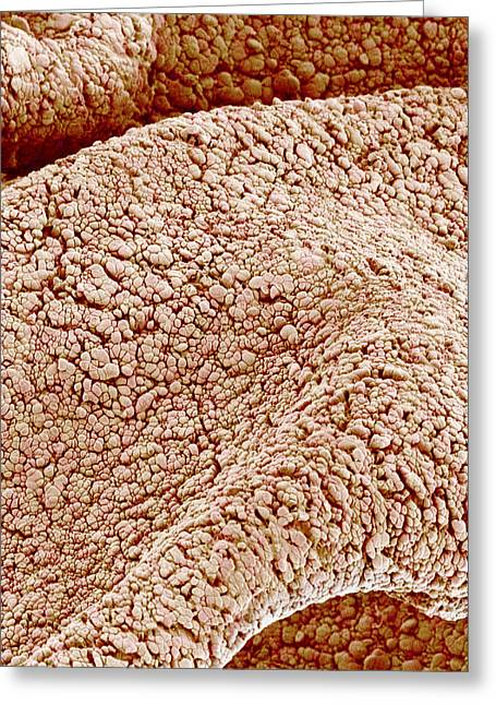 Surface Of Amnion, Sem Greeting Card
