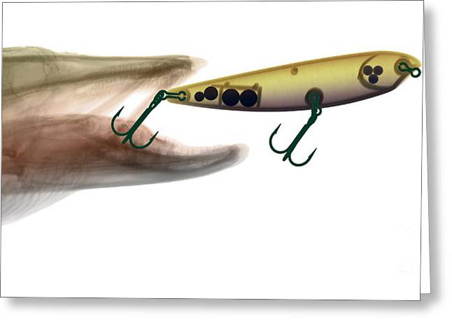 Xray Of Muskie And Lure Greeting Card by Ted Kinsman