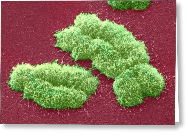 Human Chromosomes, Sem Greeting Card by Power And Syred