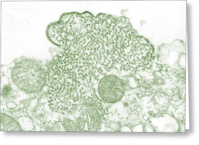 Nipah Virus Greeting Card by Science Source