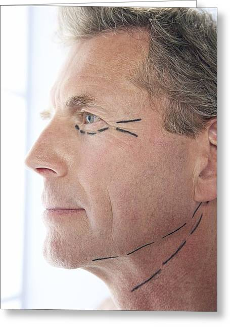 Cosmetic Surgery Greeting Card by Adam Gault
