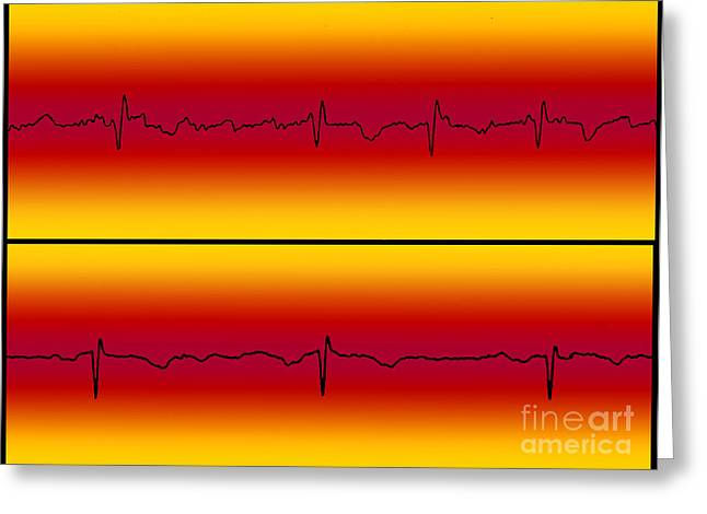 Atrial Flutter And Normal Heart Beat Greeting Card by Science Source