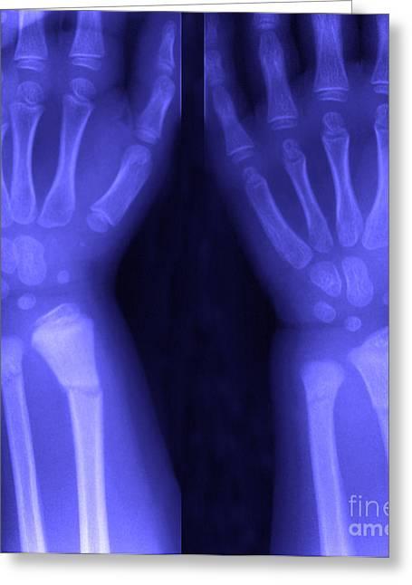 Broken Wrist Greeting Card by Ted Kinsman