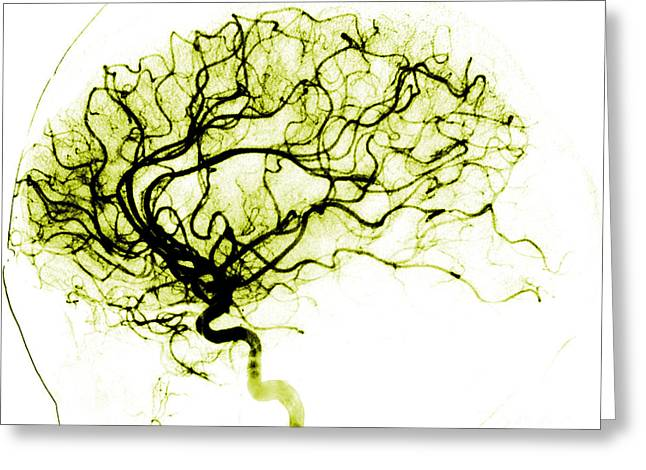 Cerebral Angiogram Greeting Card by Medical Body Scans