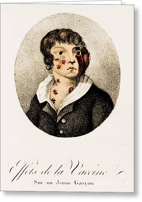 Development Of Smallpox Greeting Card by Science Source